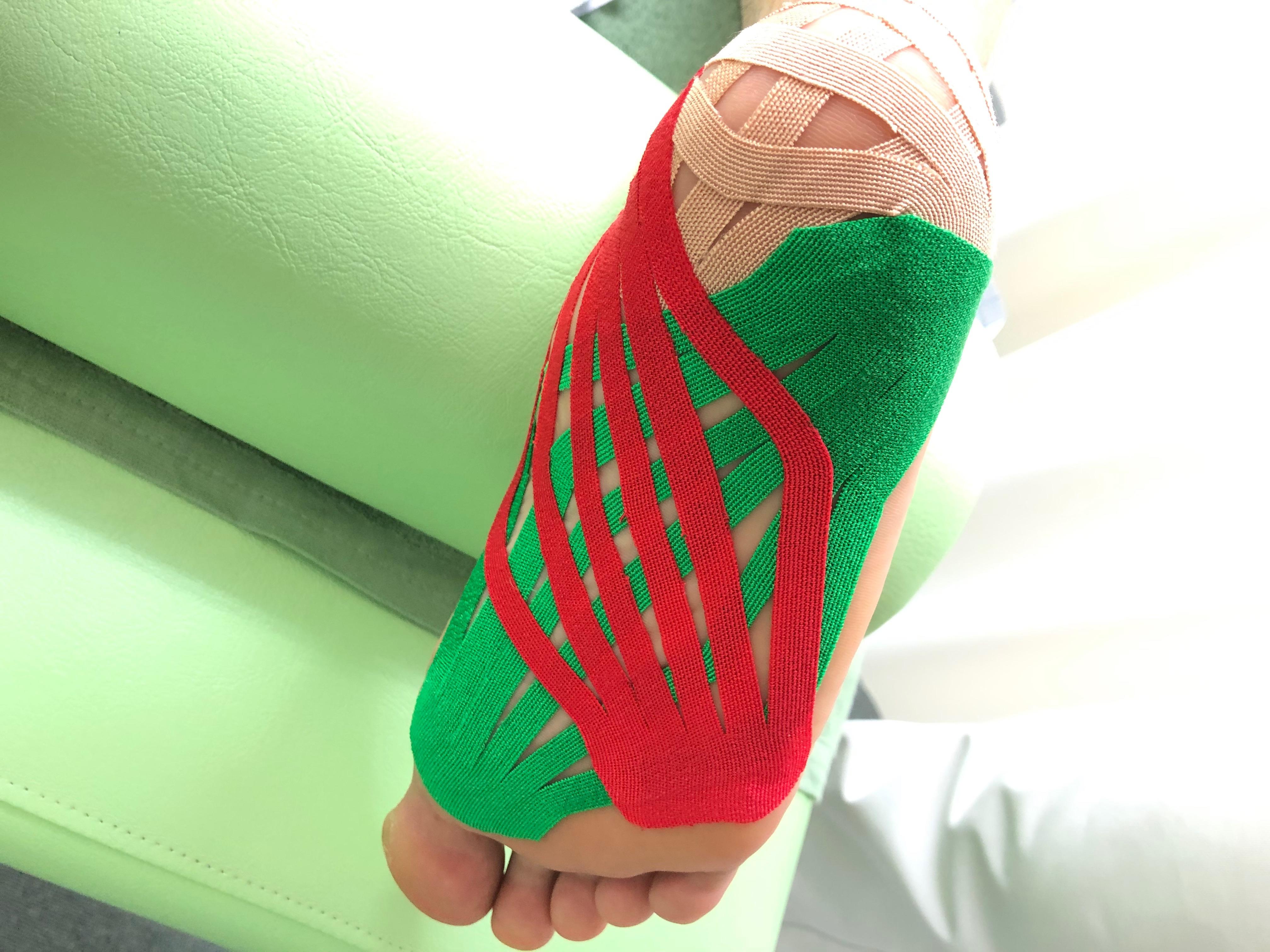 足底筋膜炎に対してのテーピング